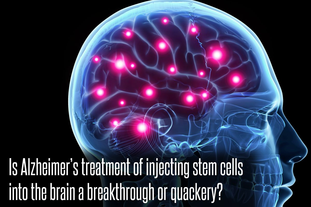 In The News_Is Alzheimer's treatment of injecting stem cells into the brain a breakthrough or quackery (2017)