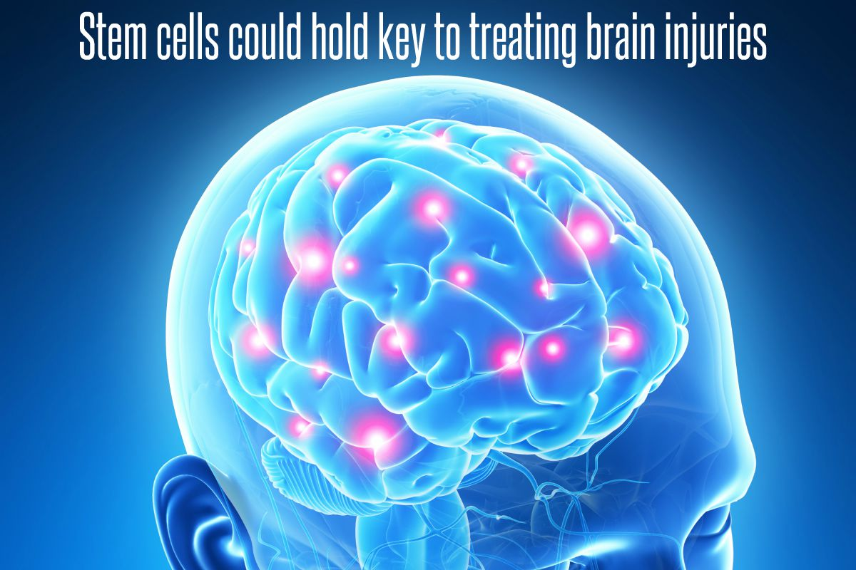 In The News_Stem Cells Could Hold Key To Treating Brain Injuries (2017)