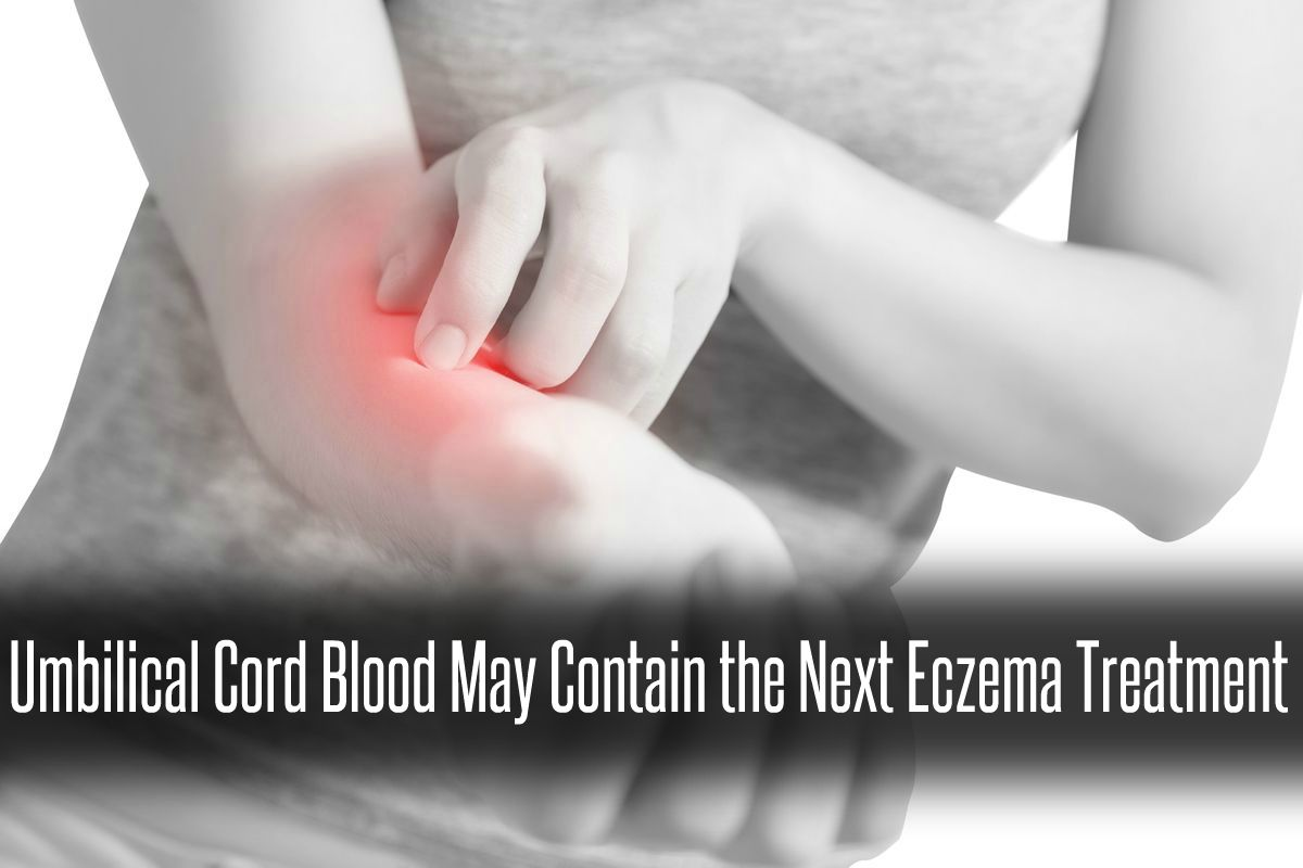 In The News_Umbilical Cord Blood May Contain the Next Eczema Treatment (2016) v2